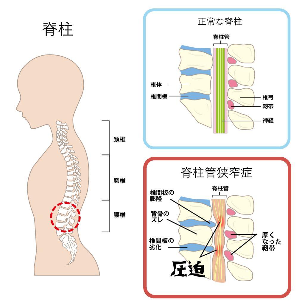 脊柱狭窄症について