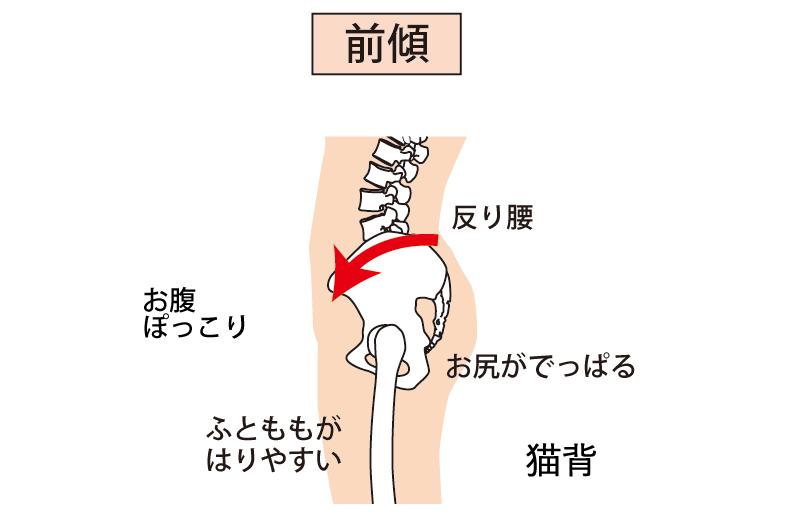 反り腰の症状